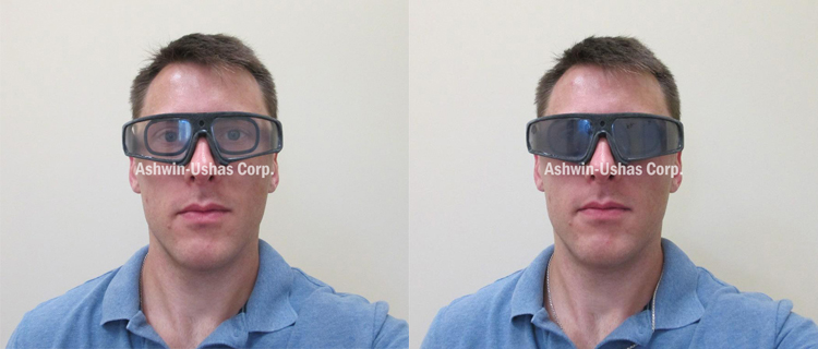 Safety sunglasses prototype with prescription insert: Typical light/dark contrast.